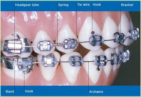 our orthodontist whitby ajax on durham orthodontics