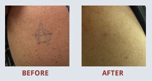 tattoo removal glasgow glasgow tattoo removal tattoo removal in glasgow