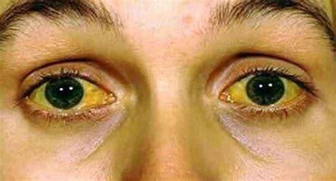Obat Mata Kuning cara mengatasi mengobati dan menyembuhkan mata kuning