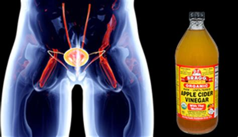 uti treatment apple cider vinegar apple cider vinegar urinary tract infection treatment step into my green world stepin2