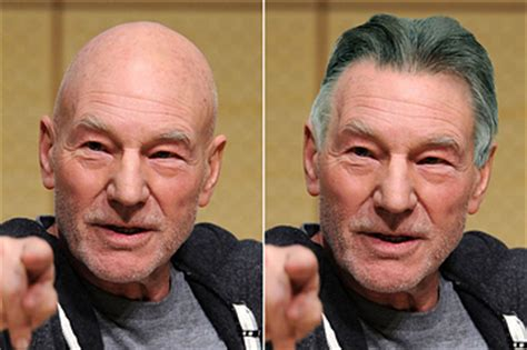 hair plug versus transplant celebrity 12 eye opening pictures of bald celebrities with hair