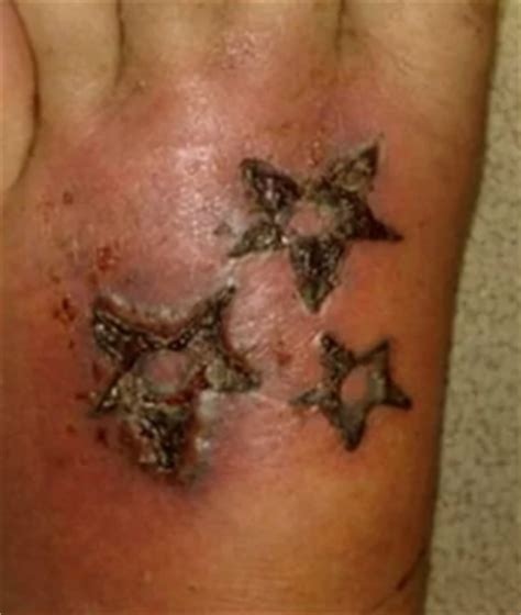 how to treat infected tattoo infected images before and after symptoms how
