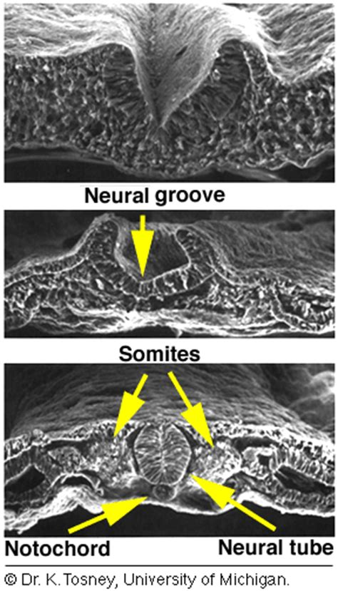 pattern formation chick chapter 14b neurulation and limb development
