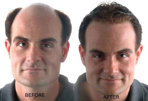 before and after thinning mens haircut image