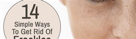 10 Ways To Get Rid Of Freckles by طرق بسيطة للتخلص من النمش المرسال
