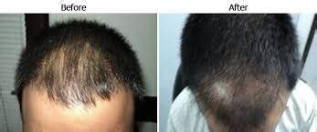 dr batra hair loss treatment cost what would be the cost of hair transplantation in india