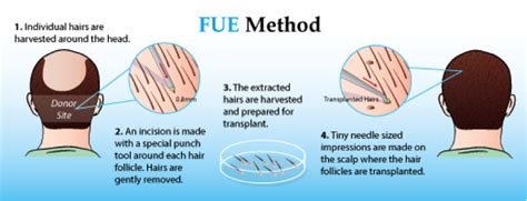 dr yates fue cost per graft fue hair transplantation cost fue transplant hyderabad