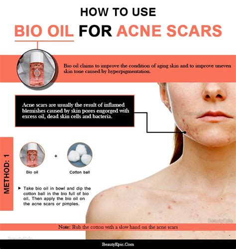 How to Use Bio oil to Remove Acne Scars Quickly