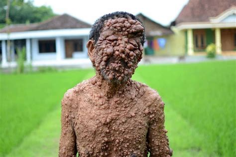 has skin condition that covers s skin in tumours which left him blind