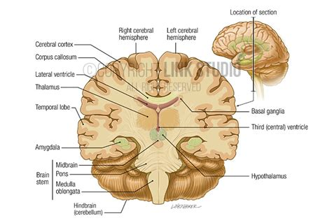 coronal sections of the brain sheep brain anatomy coronal