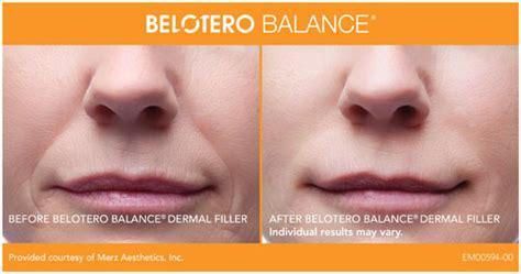 belotero balance dermal filler dermal filler provides belotero in washington dc and olney cosmetic skin