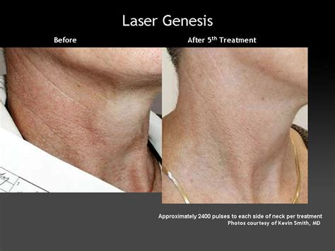 what is laser genesis treatment skin addressing your skin issues plastic surgery hub