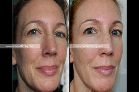 slin care for 58 year old woman slin care for 58 year old woman retin a update results on