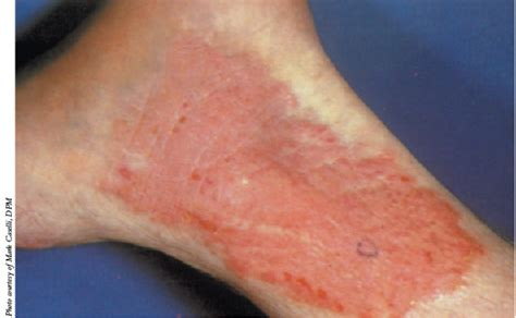 dry scaly ankles a guide to dry skin disorders in the lower extremity