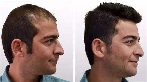 is hair transplant safe is hair transplant a safe option if it is how much does