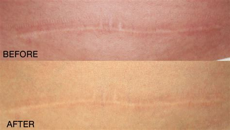 C Section Scar Fade by The World S Catalog Of Ideas