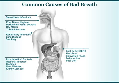 bad breath cure bad breath symptoms causes prevention treatment 187 how to relief