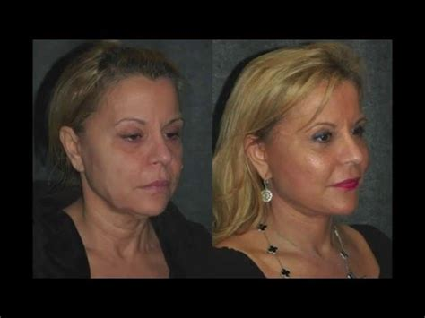 pictures of 59 year old plan womem smas facelift before and after 59 year old woman dr