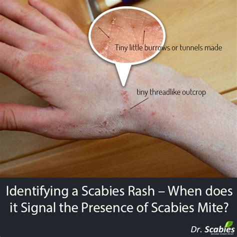 scabies treatment what does scabies rash look like breeds picture