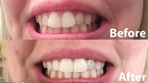 brightwhite smile teeth whitening light the best teeth whitening for 2018 reviews com