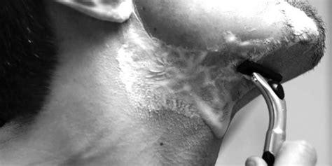 remington razor prevents ingrown hair how to prevent razor burn razor bumps ingrown hairs