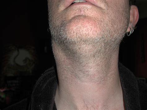 swollen neck lump flickr photo