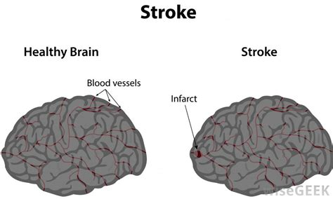can a a stroke can cracking your neck really cause a stroke with pictures