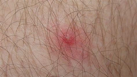 what does an embedded tick look like on a what does a tick bite look like what does an embedded tick look breeds picture