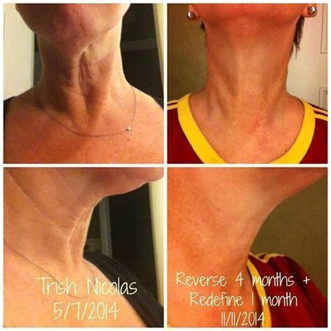 what is a turkey neck on a woman 123 best images about rodan and fields on pinterest