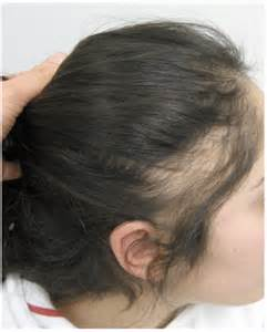 hair styles for trichotellamania the fringe sign a useful clinical finding in traction