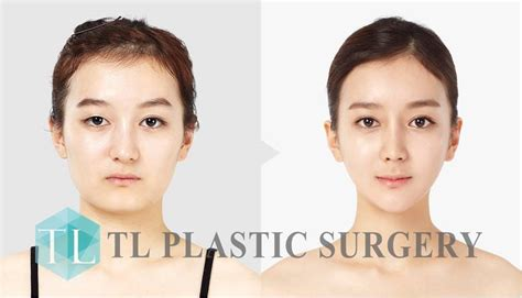 v shape jaw surgery plastische chirurgie in s 252 dkorea