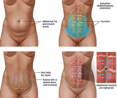 facts on liposuction and tummy tuck health 2 0