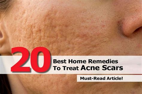 20 best home remedies to treat acne scars