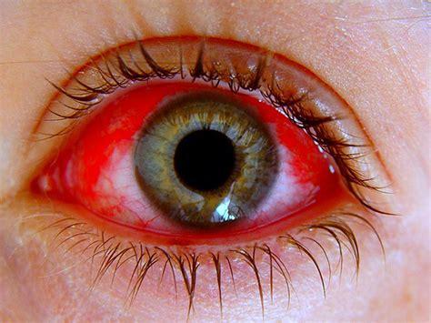 imagenes ojos con conjuntivitis pediatricblog hablemos de la conjuntivitis al 233 rgica un