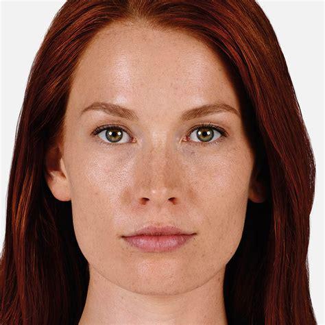 juvederm model juv 201 derm ultra xc non surgical lip fillers juv 201 derm 174