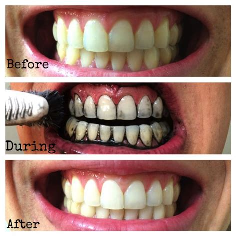 activated charcoal for dogs how does activated charcoal whiten teeth dr chauvin