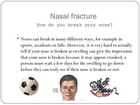broken nose diagram nasal fractures