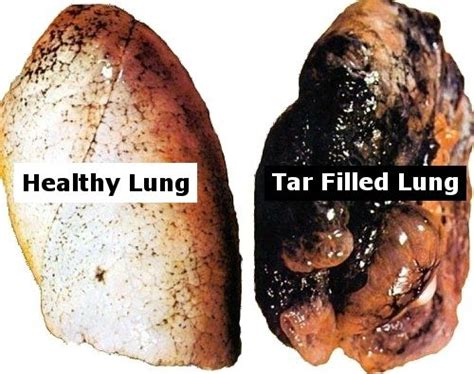 Lung Detox After by Why You Need To Quit And Detox Your Lungs Lung