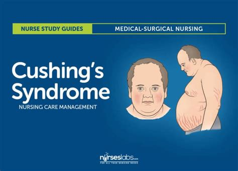 when to put a with cushing s disease cushing s nursing care management and study guide
