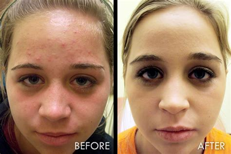 Detox After Accutane by Acne After Accutane Treatment Health