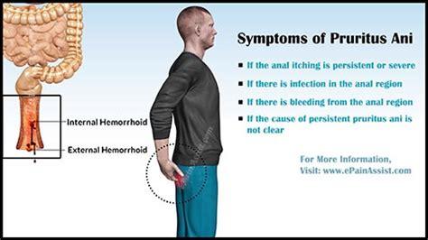 itchy bum remedy pruritis heavy black