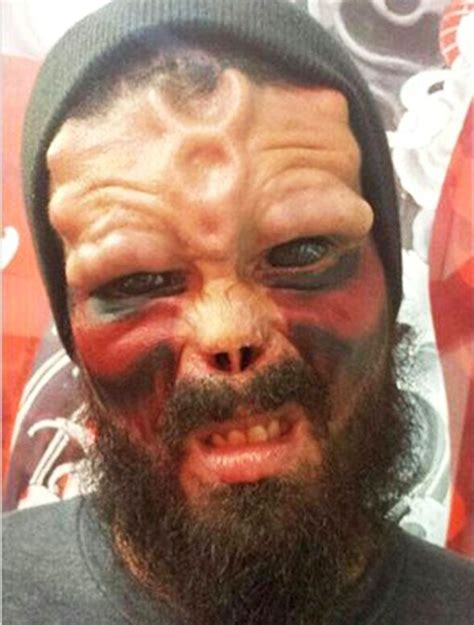 Modification Removal by Has Nose Removed To Look Like Marvel Comic Book