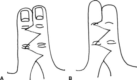 Tokotab Correction Uchio Uc 5023 term outcomes of web scar quality and function after simple syndactyly surgical
