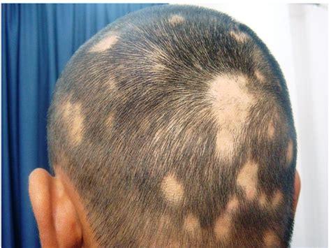 alopecia areata causes alopecia areata causes symptoms treatment natural
