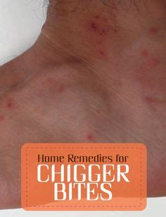 top 10 home remedies for chigger bites chigger bites