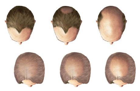 pattern baldness meaning androgenetic alopecia common problem doctor natureyoga