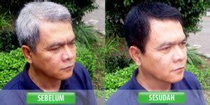 Shoo Mengkudu Bsy bsy noni black hair magic shoo penghitam rambut