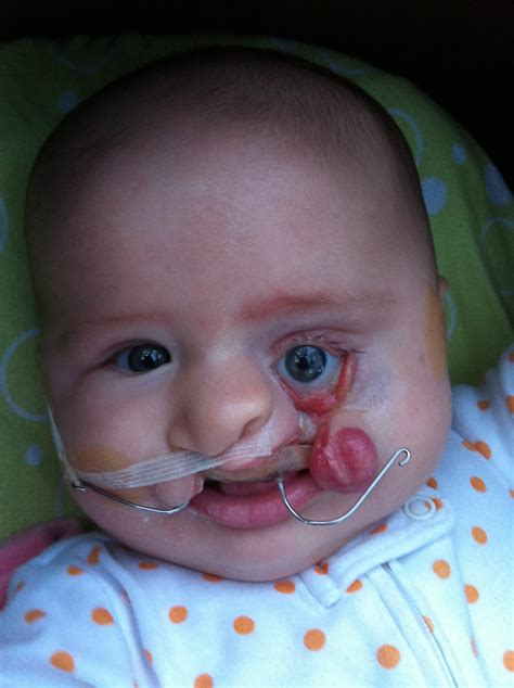 s new smile a baby with cleft lip and palate books what it s like a cleft lip palate baby meinbubuleh