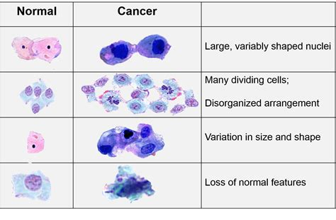 And Cancer by Characteristics Of Cancer Cells