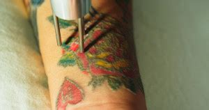 tattoo removal gulfport ms laser tattoo removal diamondhead archives astanza laser llc